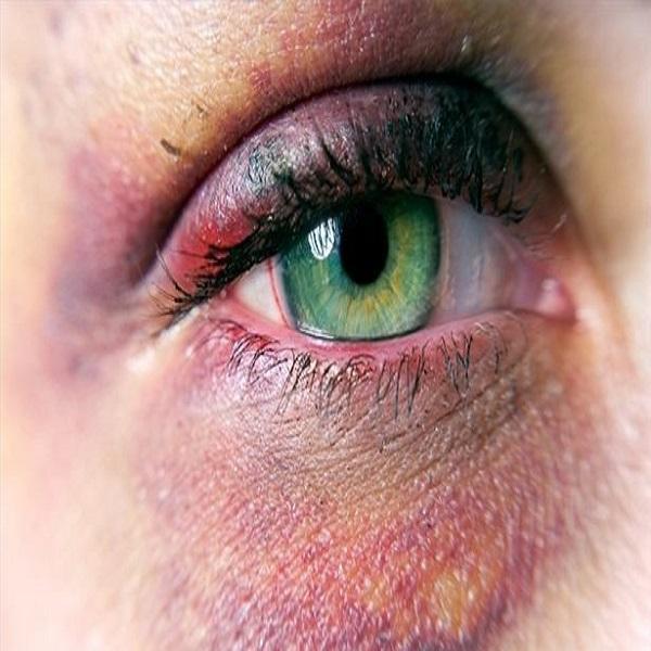 دیه کبودی صورت و اعضای بدن